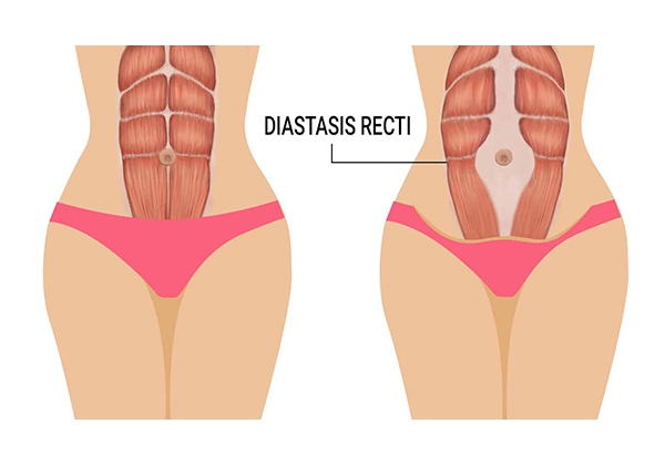 Sổ bụng sau sinh làm sao để hết? cách chữa sổ bụng hiệu quả?