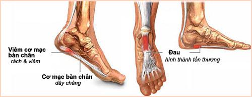 Viêm cơ mạc bàn chân